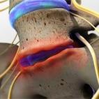 Dsic injury square